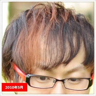 【毛が生えた!!】東京皮膚科・形成外科の薄毛治療(AGA)が凄い1