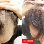 【毛が生えた!!】東京皮膚科・形成外科の薄毛治療(AGA)が凄い