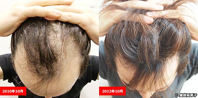 20dc779c80fb92967c422dbf2ef514bc 【育毛・発毛】薄毛治療中(AGA)に愛用してた無添加シャンプー