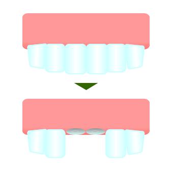 【2週間で笑顔が変わる!】出っ歯治療で白くてキレイな歯並びになる3