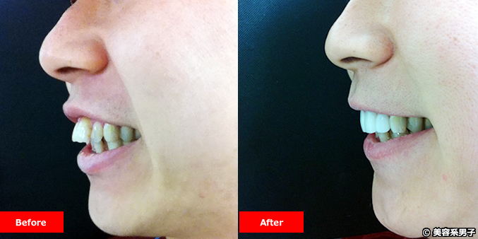 【2週間で笑顔が変わる!】出っ歯治療で白くてキレイな歯並びになる