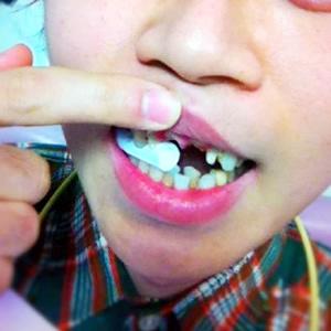 【出っ歯】印象が大きく変わるセラミック治療-保険適用外白い歯/東京04