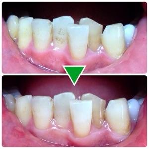 【体験レポ】ポリリンキューブ《速攻美白》で歯のホワイトニング