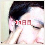 【体験11日目】シミ消しクリーム『ユークロマ(EUKROMA)』口コミ