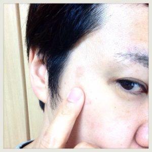 【体験19日目】シミ消しクリーム『ユークロマ(EUKROMA)』口コミ