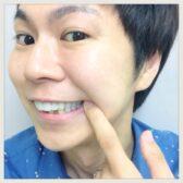 【朗報】保険適用の白い歯(CAD/CAM冠)箇所条件変更!東京/銀歯/歯科