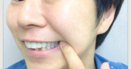 【白い歯】保険適用のハイブリッドセラミック(CADCAM冠・東京)