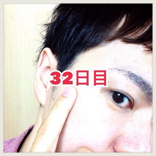 【体験32日目】シミ消しクリーム『ユークロマ(EUKROMA)』口コミ