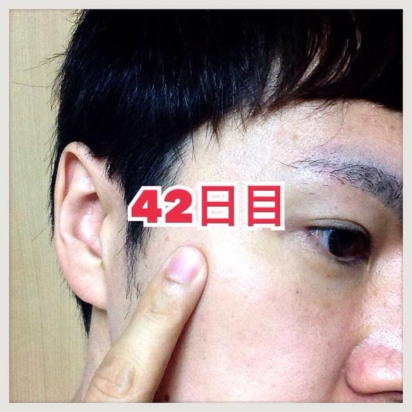 【体験42日目】シミ消しクリーム『ユークロマ(EUKROMA)』口コミ