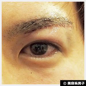 【目元で印象が変わる!】眉下切開による二重まぶた整形手術-口コミ