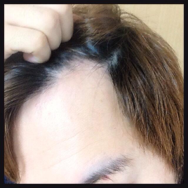 【体験4週間目】薬用『リグロウ』育毛・発毛体験レポート-口コミ
