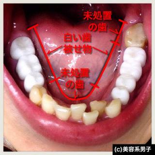 【究極のホワイトニング!!】東京都新宿区おすすめの歯医者さん