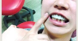 【究極のホワイトニング!?】東京都新宿区おすすめの歯医者さん