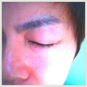 【まつげ育毛】careprost(ケアプロスト)効果と使い方と副作用