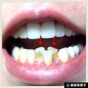 【@cosme第1位!】重曹歯磨き粉『歯磨撫子』で白くなる?【体験開始】