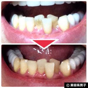 【体験終了】人気ホワイトニング歯磨き粉『歯磨撫子』の効果-口コミ