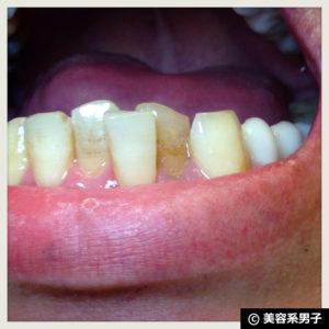 【歯のホワイトニングジェル】ビーグレンデンタル-口コミ【体験開始】