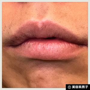 【唇の乾燥・荒れに!】医薬品リップクリーム『モアリップ』【体験開始】