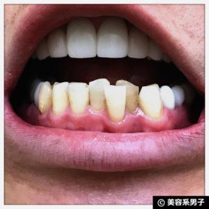 【効果あり】ホワイトニング歯磨き粉『OraPearl』口コミ【体験終了】