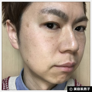 【モンドセレクション金賞】アンプルール美白トライアル【体験開始】