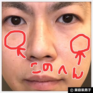 【シミ・肝斑】BIHAKUENトラネキサム酸(治療薬/副作用)【体験開始】