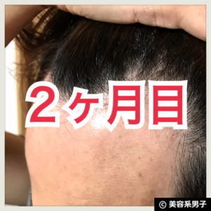 【AGA治療】ミノキシジル世界最高濃度『ポラリス』育毛【2ヶ月目】