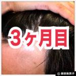 【AGA治療】ミノキシジル世界最高濃度『ポラリス』育毛【3ヶ月目】