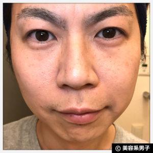 【体験4ヶ月目】シミ・肝斑に『BIHAKUENトラネキサム酸』治療薬