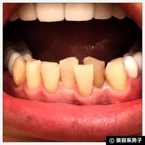 【体験終了】Dr.オーラル ホワイトニングパウダーで歯白くなるのか?