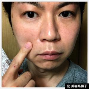 【体験終了】ULU(ウルウ)キープモイストクリームの使い方【赤ら顔】01