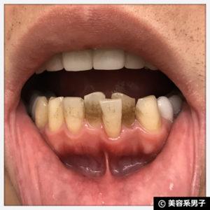 【白い歯】歯医者専用ホワイトニング歯磨き粉「GCルシェロ」効果11