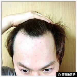 【おすすめ】BAKUシャンプー&トリートメント体験2ヶ月の育毛効果03