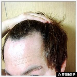 【おすすめ】BAKUシャンプー&トリートメント体験2ヶ月の育毛効果04