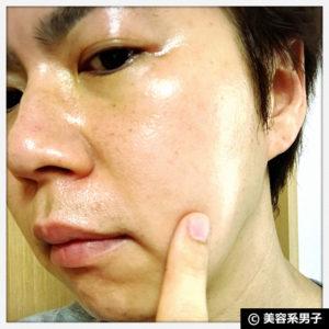 【男の美肌】トレチノインに紫雲膏(漢方)を加えた効果-スキンケア12