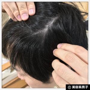 【M字ハゲ】薄毛が目立たない髪型と白髪が気にならない髪色【動画】05
