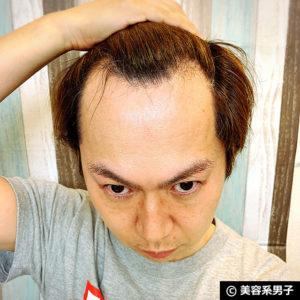 【育毛剤】スティミュレイティングシャンプー&コンディショナー体験09