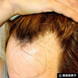 【育毛剤】スティミュレイティングシャンプー&コンディショナー体験10