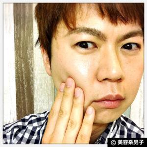 【スキンケア】トレチノイン+天使の美肌水(化粧水)の効果14