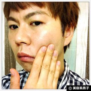 【スキンケア】トレチノイン+天使の美肌水(化粧水)の効果16