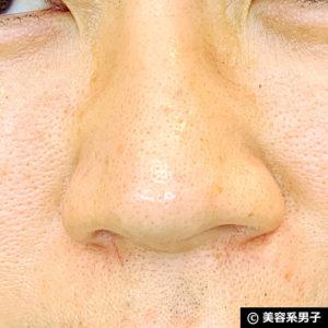 【いちご鼻】毛穴の黒ずみを落とす効果的な方法 泥洗顔「ロゼット」01