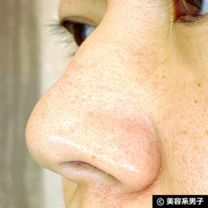 【いちご鼻】毛穴の黒ずみを落とす効果的な方法 泥洗顔「ロゼット」02