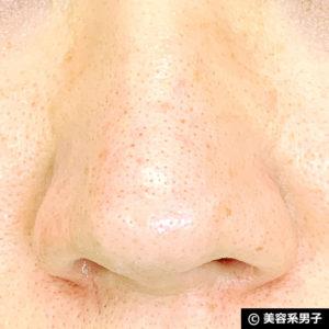 【いちご鼻】毛穴の黒ずみを落とす効果的な方法 泥洗顔「ロゼット」09