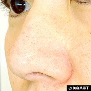 【いちご鼻】毛穴の黒ずみを落とす効果的な方法 泥洗顔「ロゼット」10