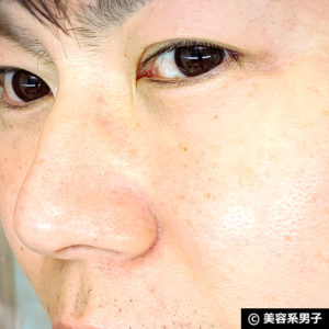 【いちご鼻】毛穴の黒ずみを落とす効果的な方法 泥洗顔「ロゼット」19