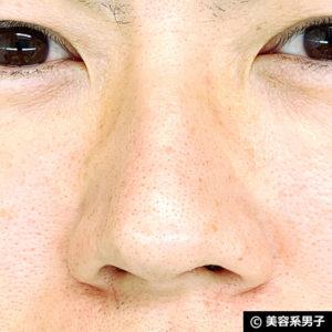 【いちご鼻】毛穴の黒ずみを落とす効果的な方法 泥洗顔「ロゼット」20