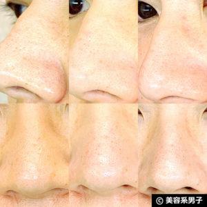 【いちご鼻】毛穴の黒ずみを落とす効果的な方法 泥洗顔「ロゼット」22