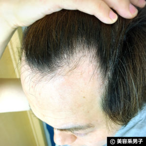 【体験2ヶ月】育毛シャンプー Foligain スティミュレイティング-効果03