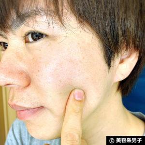 【美肌カクテル】トレチノイン+ヒルドイド+セラミドウォーター感想05