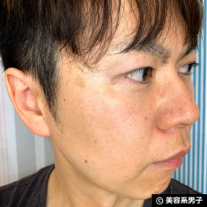 【美肌】メンズにオススメ3in1シミ消し「メラケアクリーム」体験開始04