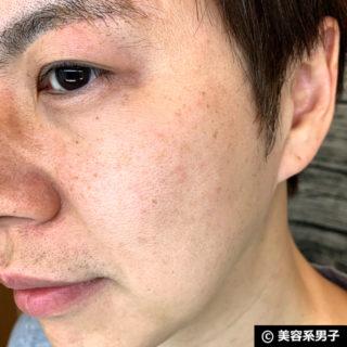 【赤ニキビケア】オールインワン化粧品「薬用アッカノン」体験開始06